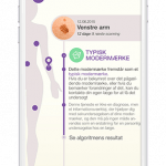 Screenshots fra applikationen SkinScan