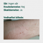 Screenshots fra applikationen Hudkræft Kontrol